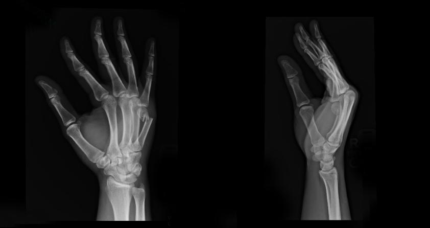 Hayabusa2-wrists